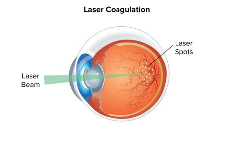 diode laser retinal photocoagulation 28 images outcome of transpupillary diode laser