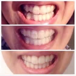 pin  image dental  invisalign teeth whitening