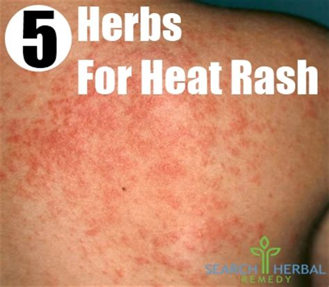 pin remedies for underarm heat rash image search results