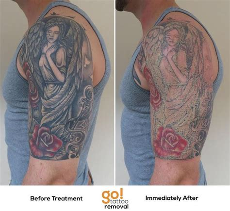 images of tattoo removal 874 best removal blisters images on mri