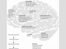 Cognitive deficits and associated neurological ... Lancet Neurology