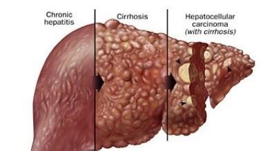 gastroenterologists in florida | hepatocellular carcinoma