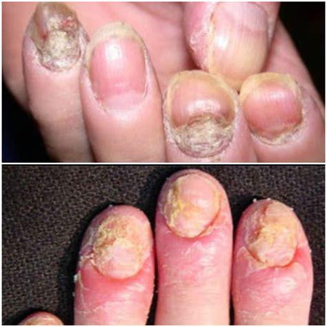 imagenes de uñas con onicomicosis 191 peligros reales de u 241 as esculpidas mi opini 243 n
