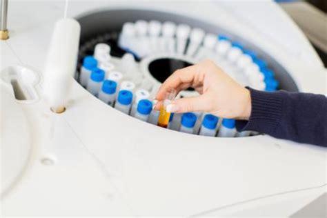analisi sedimento urinario sedimento urinario qu 233 es y qu 233 indican sus resultados
