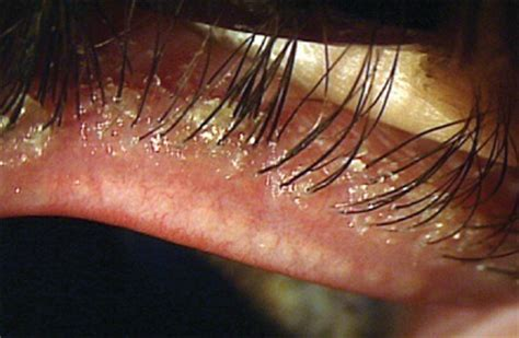 How Many Eggs Do Bed Bugs Lay Eyelash Mites How To Get Rid Of These Creepy Worm Like Pests