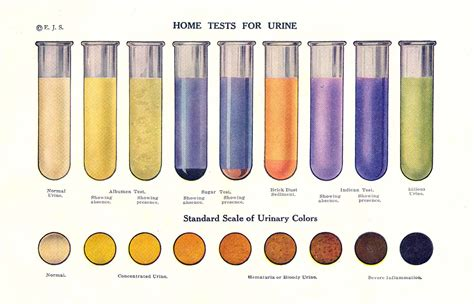 color urine vintage home tests for urine color print