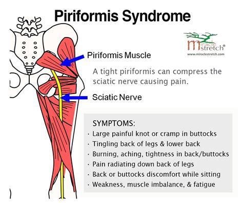 nerve pain causes nerve pain thighs best 25 piriformis syndrome symptoms ideas on pinterest