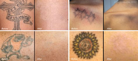 laser removal skinpossible laser light calgary