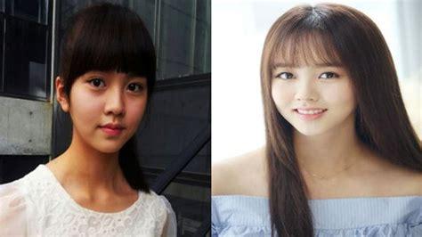 kim soo hyun surgery did kim so hyun undergo plastic surgery youtube