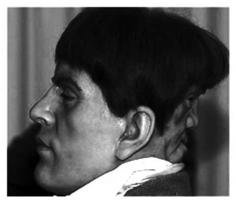 a man with two faces: edward mordrake
