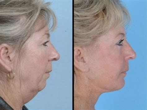 sagging jowls(trick#1): face exercises to lose face fat