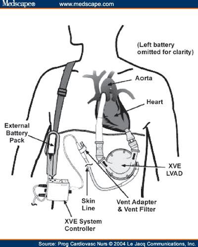 nursing education and implications for lvad therapy