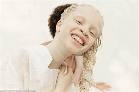 albino hair feel albino twins from s 227 o paulo become models onlinenigeria com