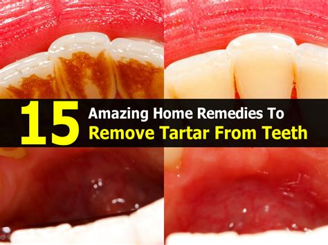 15 amazing home remedies to remove tartar from teeth
