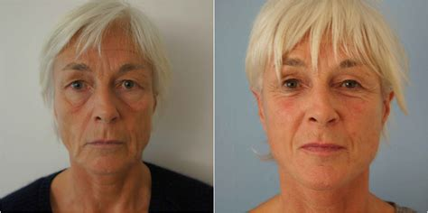 Is A Mini Lift A Facelift Alternative by Mini Facelift Or Lift Surgery
