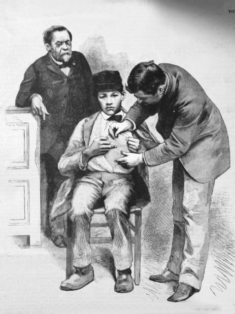 In 19th century, rabies was menacing | Local News