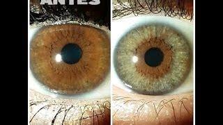 mensajes subliminales ojos verdes resultados otoplastia rinoplastia antes y despu 233 s medell 237 n colombia