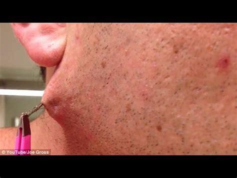herpes nasale interno removing ingrown hairs hair