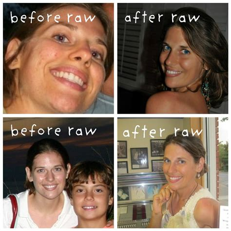 Bad Skin While Detoxing by Before And After Food Detox Images Food Detox