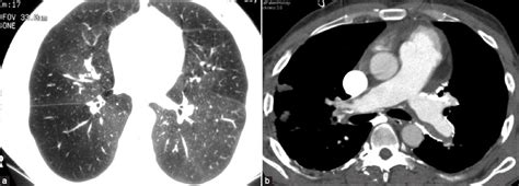 mosaic pattern pulmonary hypertension a systematic approach to interpretation of heterogeneous