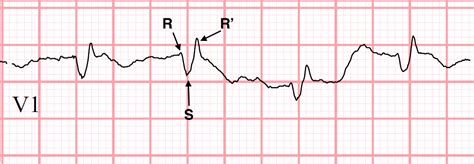 rsr pattern ecg meaning condition specific ekgs right bundle branch block rbbb