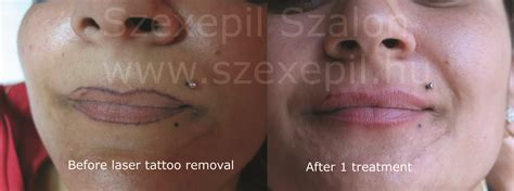removal of permanent tattoo permanent makeup removal style guru fashion