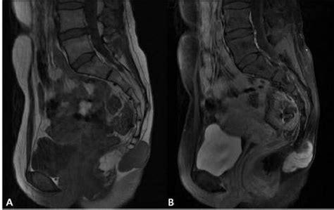 pilonidal cyst mri subcutaneous sacrococcygeal myxopapillary ependymoma in