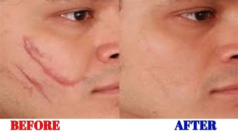 how to remove old scars from legs amp face natural scar