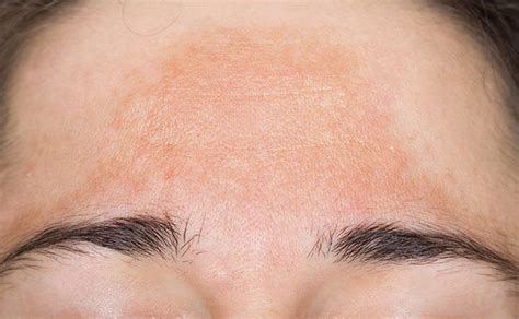 melasma treatment melbourne melasma yarra valley