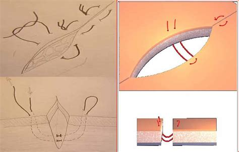 punti sutura interni pin antes despues corte alisado y reflejos con gorra on