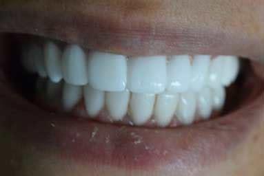 cosmetic dentistry heliopolis dentist clinic egypt