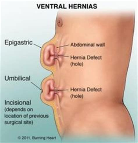 abdominal hernia types more on umbilical hernia hernia inguinal and