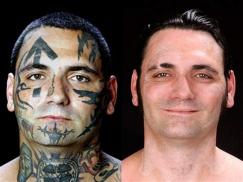 face tattoo removal before and after skinhead sheds tattoos 16 amazing photos photo 1