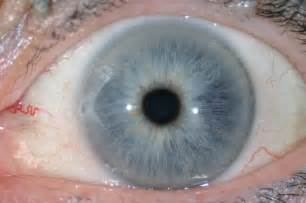 iris eye color eye colors december 2010