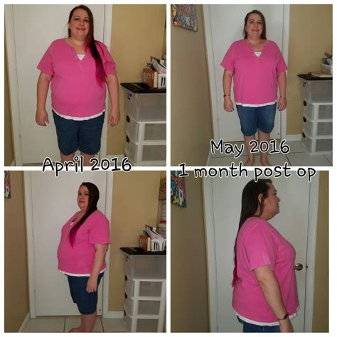 weight loss 6 weeks after gastric sleeve weight loss one month post op gastric sleeve weight loss