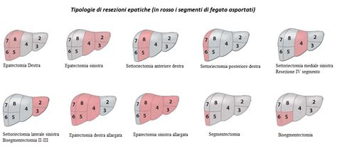 il fegato porta dolore resezione epatica centro regionale tumori epatici