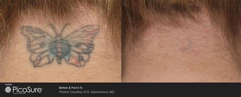 r20 tattoo removal before and after hada cosmetic medicine