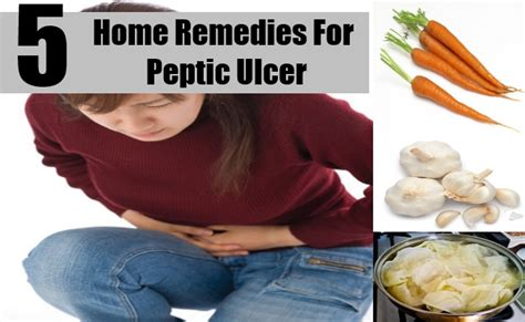 5 best home remedies for peptic ulcer treatments