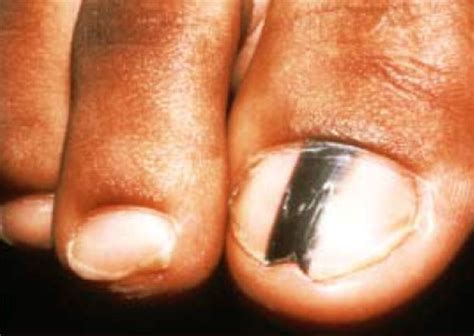 nail bed melanoma melanoma under nail bed images frompo 1