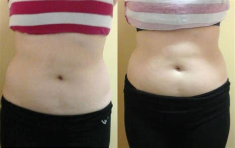 lipo light body contouring body contouring before after photos lightrx face body