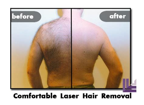 Heavy Hair On Vigina | st louis laser hair removal hairstylegalleries com