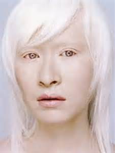 what color do albinos albinism pictures definition symptoms treatment causes