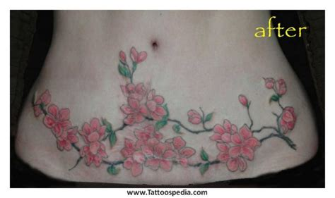 fat above c section scar 25 best ideas about tummy tuck pictures on pinterest
