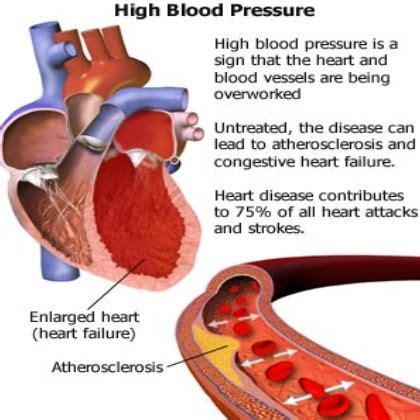 home remedies for high blood pressure my remedys