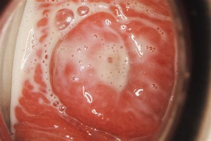 trichomoniasis discharge color flag symptoms and clinical signs gponline