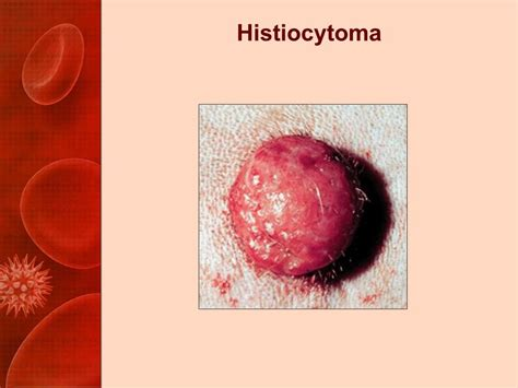 histiocytoma in dogs practical oncology cell tumors ppt