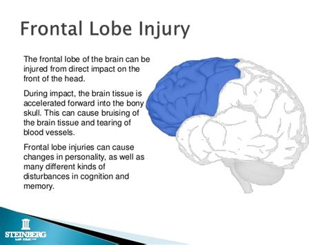 Brain Blindness Sports Injuries And The Law