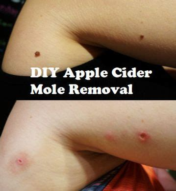home mole removal best 25 mole removal ideas on