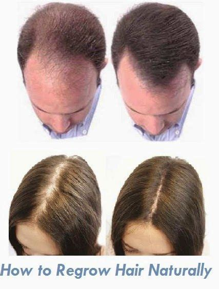 how to let my hair grow from an asymetric hairstyle 25 best ideas about regrow hair on pinterest hair