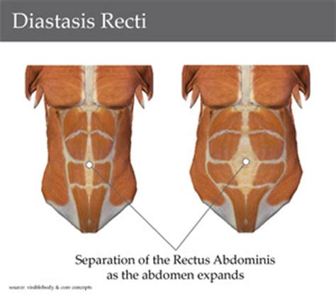 Stomach Sore After C Section by Tummy Zip What Is A Diastasis